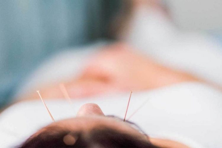 Treat Your Illness In These Acupuncture NJ Clinics - A ...